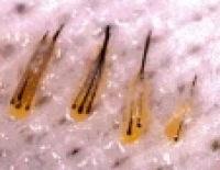 trapianto bulbo dei capelli