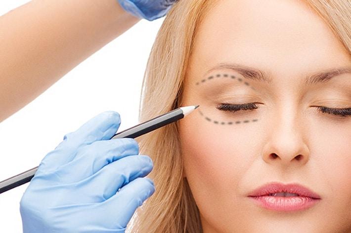 Blefaroplastica estetica per il contorno occhi