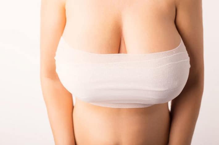 Intervento di mastopessi o lifting del seno