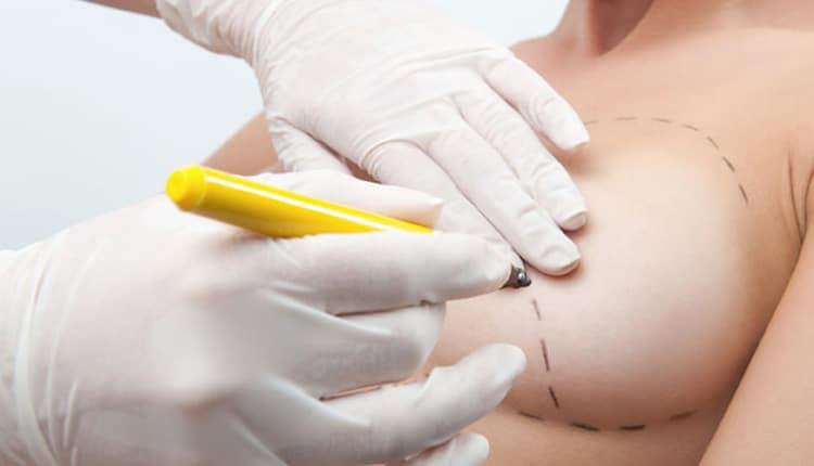 chirurgia estetica seno Npoli