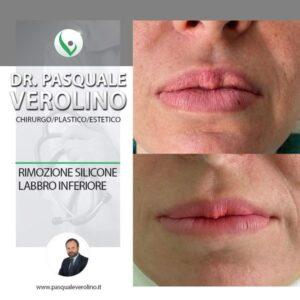 Fille labbra - rimozione silicone da labbro inferiore