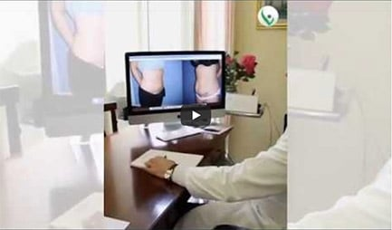 addominoplastica video